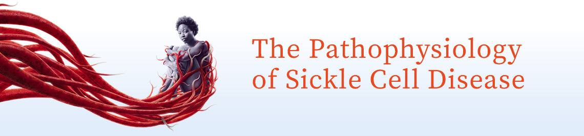 The Pathophysiology of Sickle Cell Disease