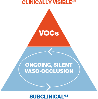 On-going, silent vaso-occlusion is the cause of every vaso-occlusive crisis (VOC)